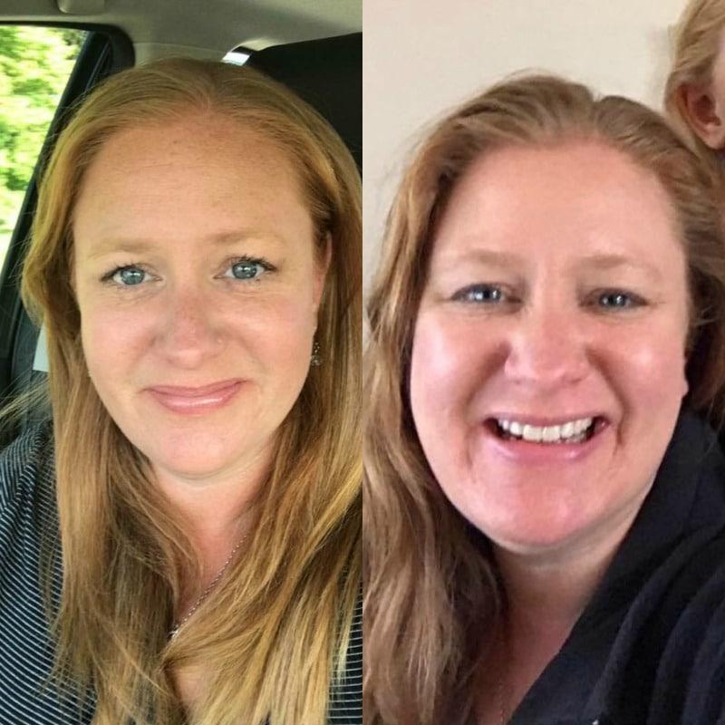 My Weight Loss Story - 3 Tips For Losing Weight Fast